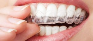 How to Align Teeth in Different Ways